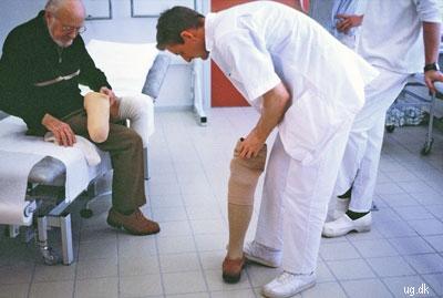 Protese - Det kunstige ben giver næsten normal førlighed.