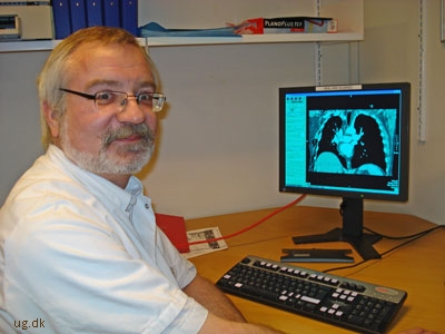 Claus V. Jensen har været radiolog i 15 år.
