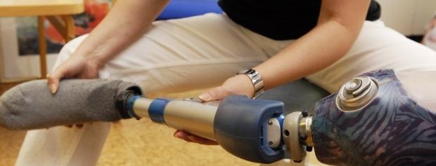 Ortopædistelev med benprotese